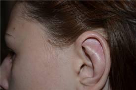 Лазерная коррекция ушной раковины