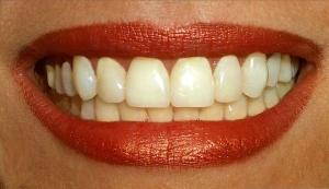 В США разработан новый способ лечения зубов