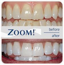 Отбеливание зубов - процедура сложная