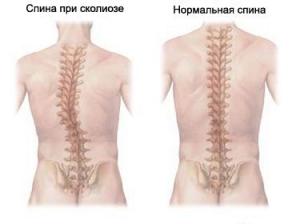 Лечение и профилактика сколиоза